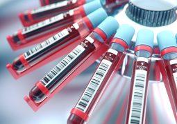 Standardblutspenden Zellen Proteine Sepsis