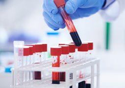 Collection of Autoimmune Diseases